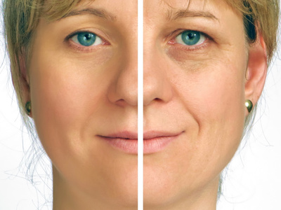 Face lift without surgery